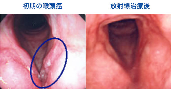 ん 咽頭 が